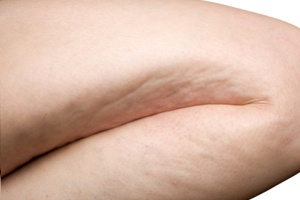 Spider Veins Treatmens Alberta