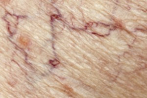 Spider Veins Treatments Alberta